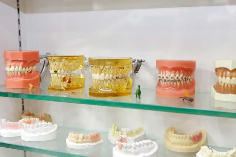 3.歯の寿命を縮めない入れ歯・ブリッジを提供します